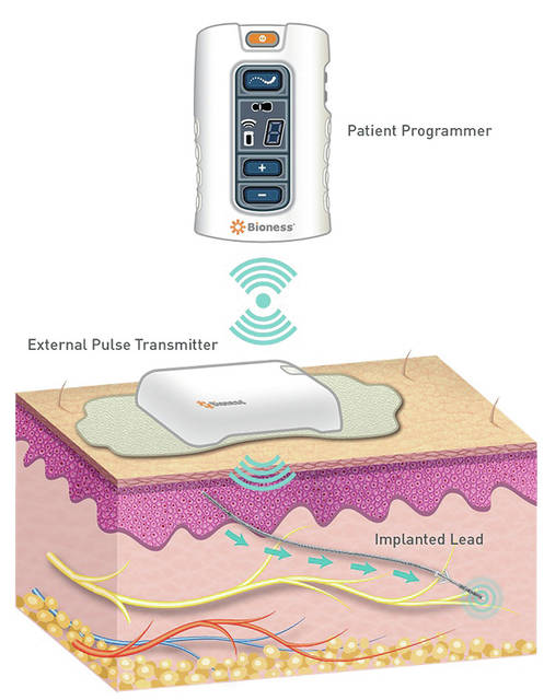 The StimRouter by Bioness is the first FDA-cleared minimally-invasive neuromodulation device designed to treat chronic pain of a peripheral nerve origin.